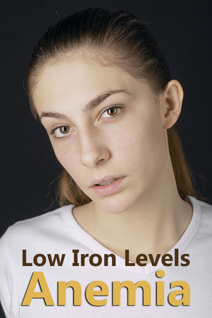 Low Iron Levels – Iron Deficiency Anemia