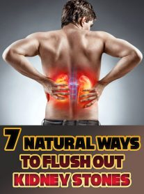 7 Natural Ways to Flush Out Kidney Stones