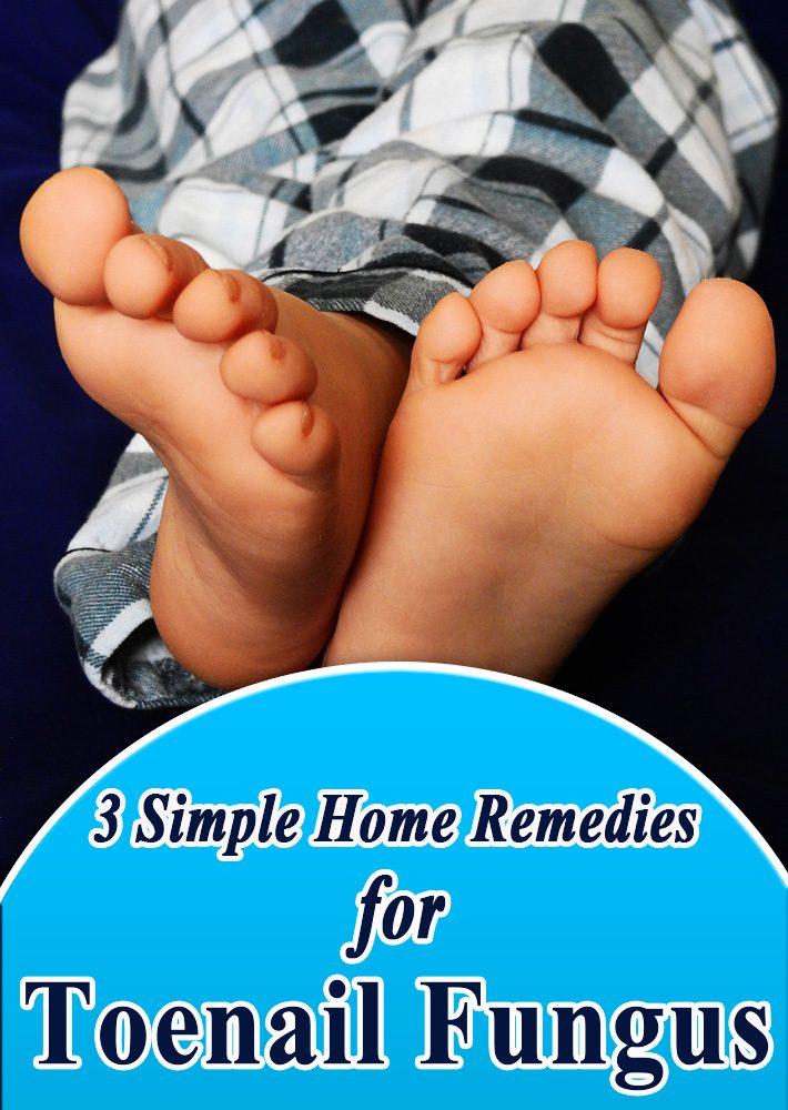 Quiet Corner:3 Simple Home Remedies for Toenail Fungus - Quiet Corner