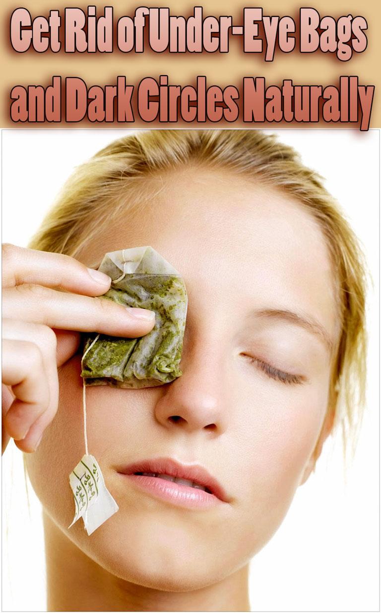 Get Rid of Under-Eye Bags and Dark Circles Naturally