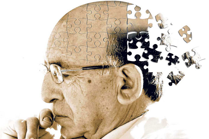 Aducanumab – Reduces plaques in Alzheimer's disease